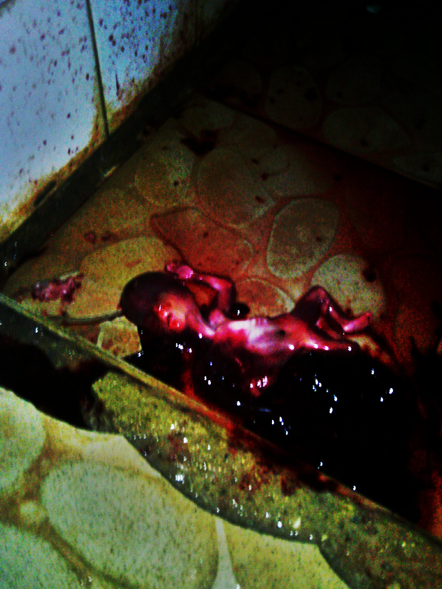 Another Dead Baby Found In UNICAL Female Hostel