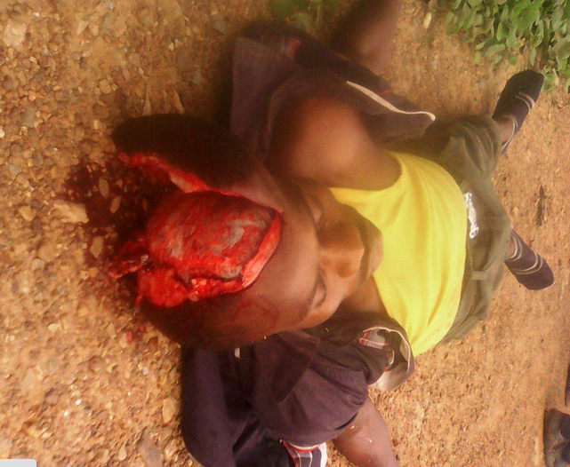 One of the dead victims with an open skull