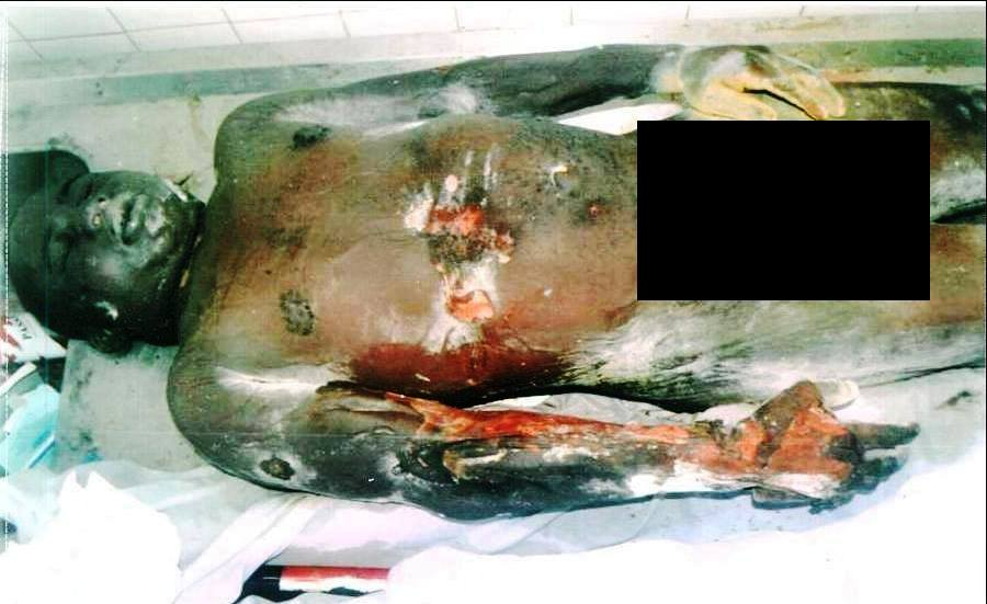 Late Stanley Etim with wounds as he was deposited at the UCTH morgue