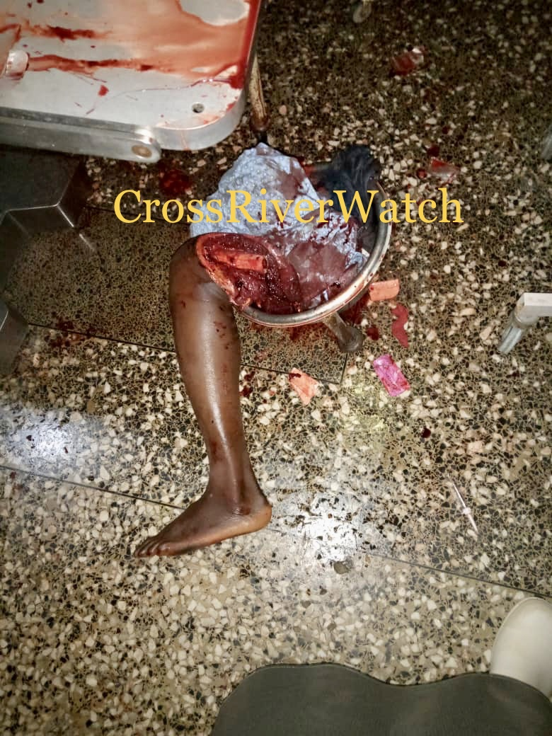 Picture of victims of stray bullets in the Alphonsus Ogar Eba defection from PDP to APC in Yala
